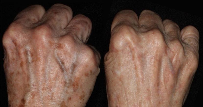 Mole Removal | Patient Information | Mole Check Clinic