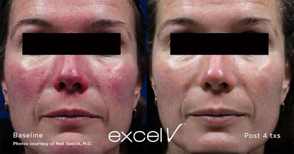 Rosacea Treatment Laser Face Treatments Melbourne Mole Check